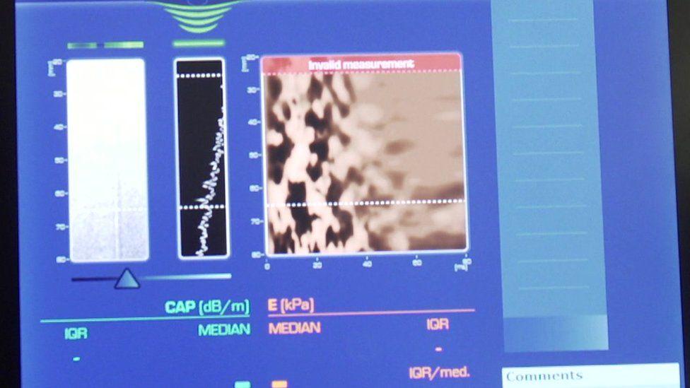 Liver scan display