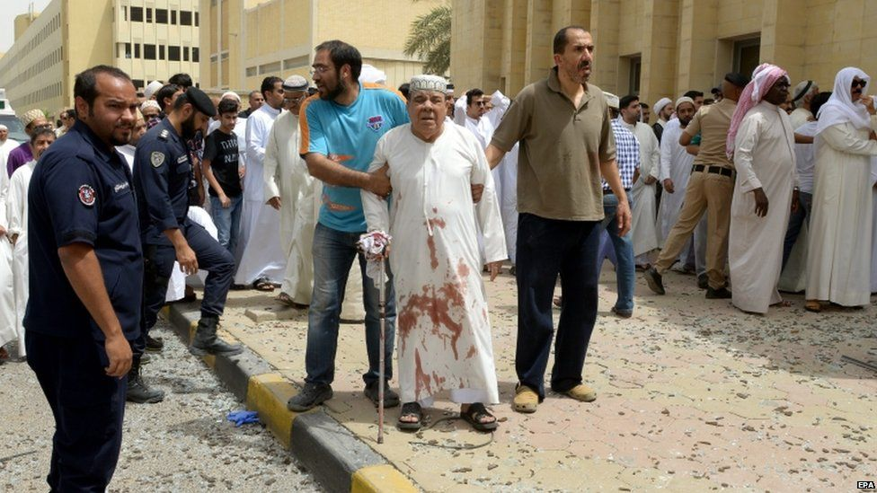 An injured man is helped following a blast at Imam Sadiq Mosque in al-Sawaber, Kuwait City, Kuwait, on 26 June 2015.
