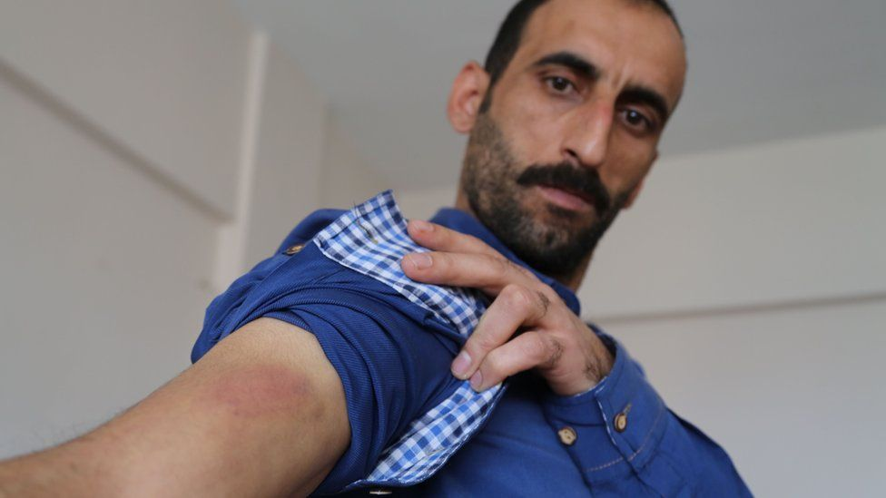 Kamil Uluc shows burn mark to his arm, allegedly by torture