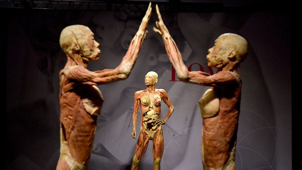 Real bodies\' exhibition causes controversy in Australia - BBC News