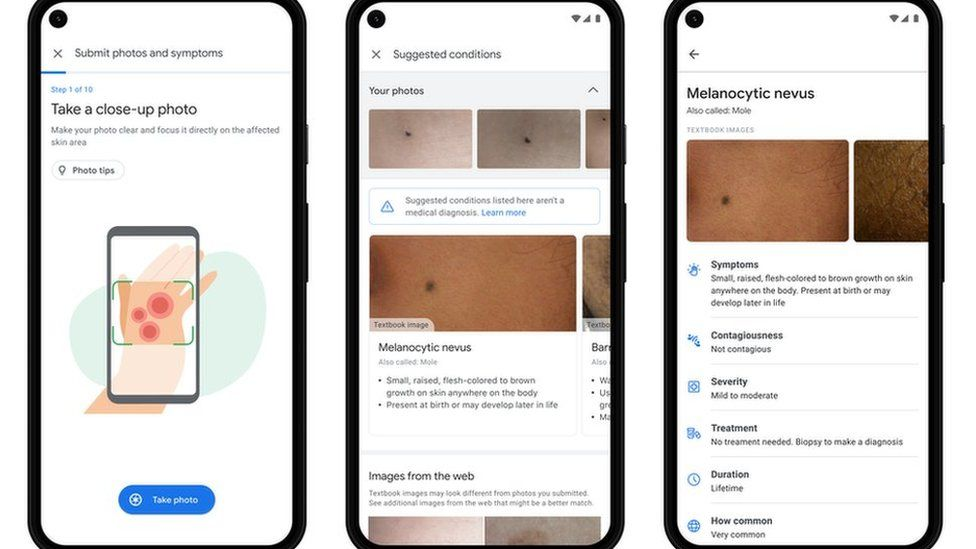 Dermatology assist tool image