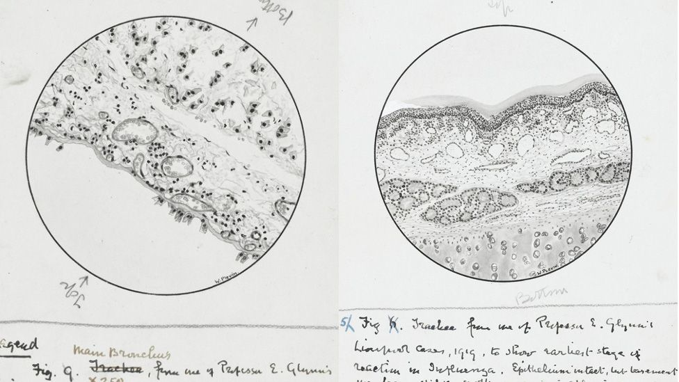 Anatomical drawings of the effect of influenza, from 1918