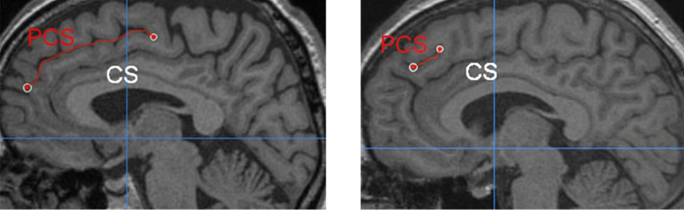 two brain scans showing one long and one short PCS