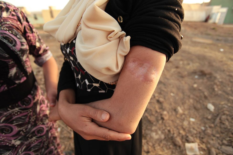 Scar on Laila's arm