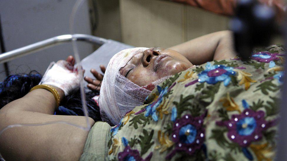 A woman injured in Muzaffarnagar riots in September 2013