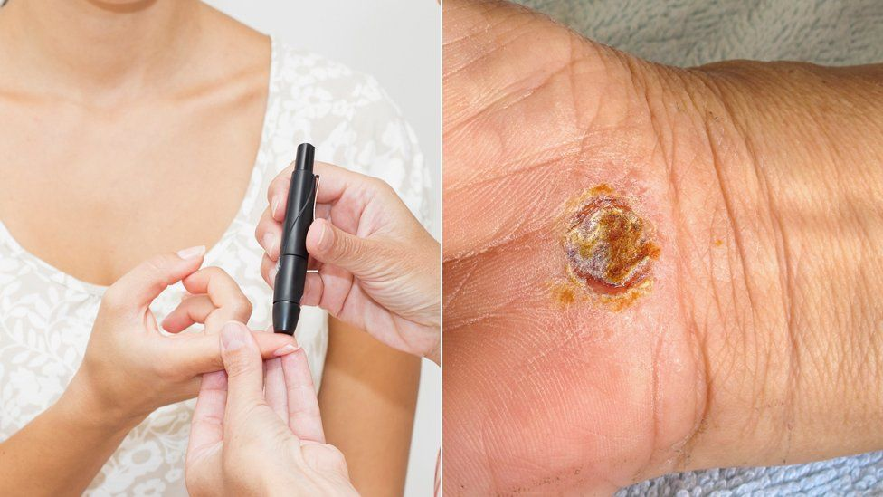 A blood glucose test and a hand with a healing wound