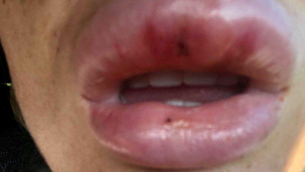 Rachael Knappier had lip filler