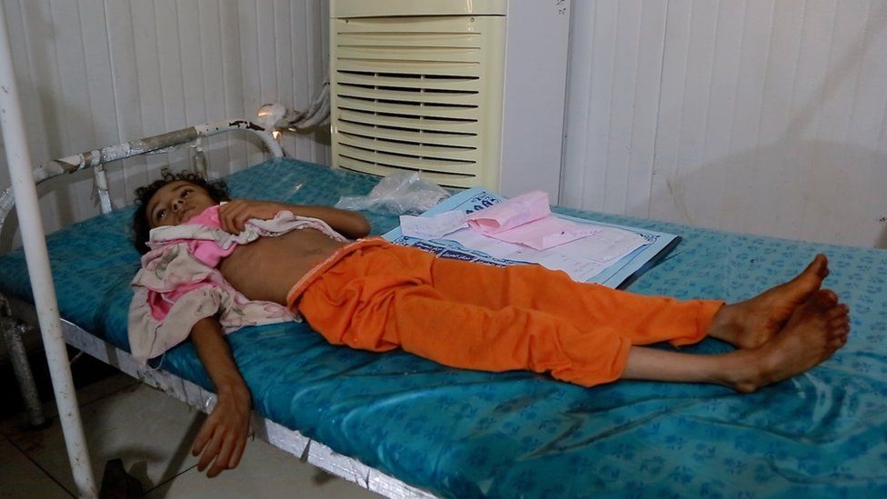 Picture showing child suffering with cholera