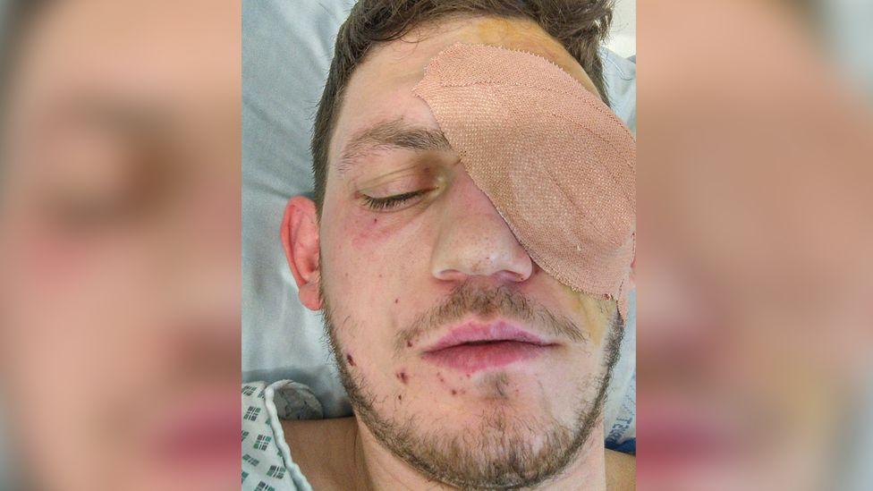 Antony Barry with bandaged eye