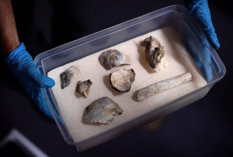 Fragments of human skeleton