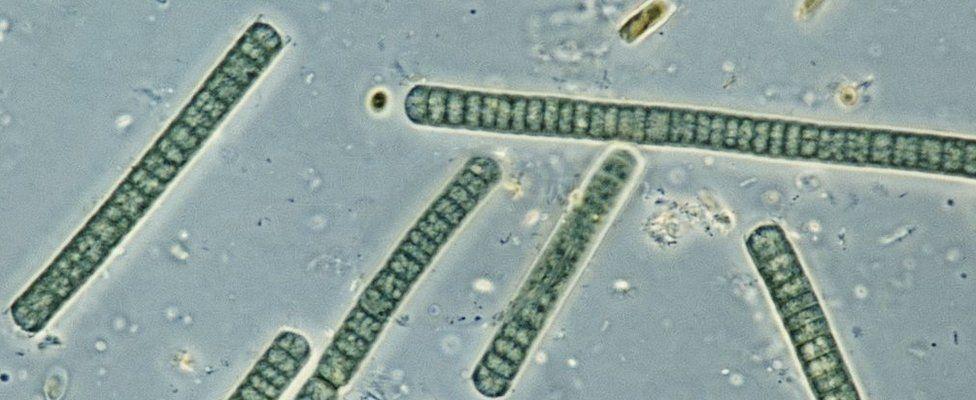 Oscillatoria, genus cyanobacterium, blue-green algae, seen under a microscope.
