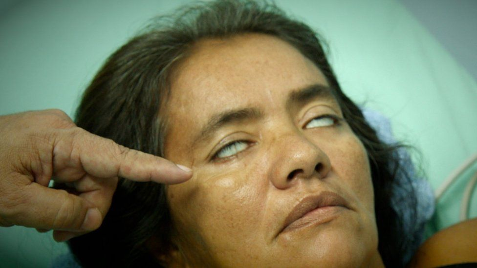Woman with paralysed eyes