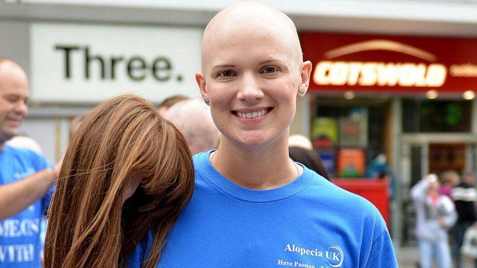 Jen Chambers from Alopecia UK