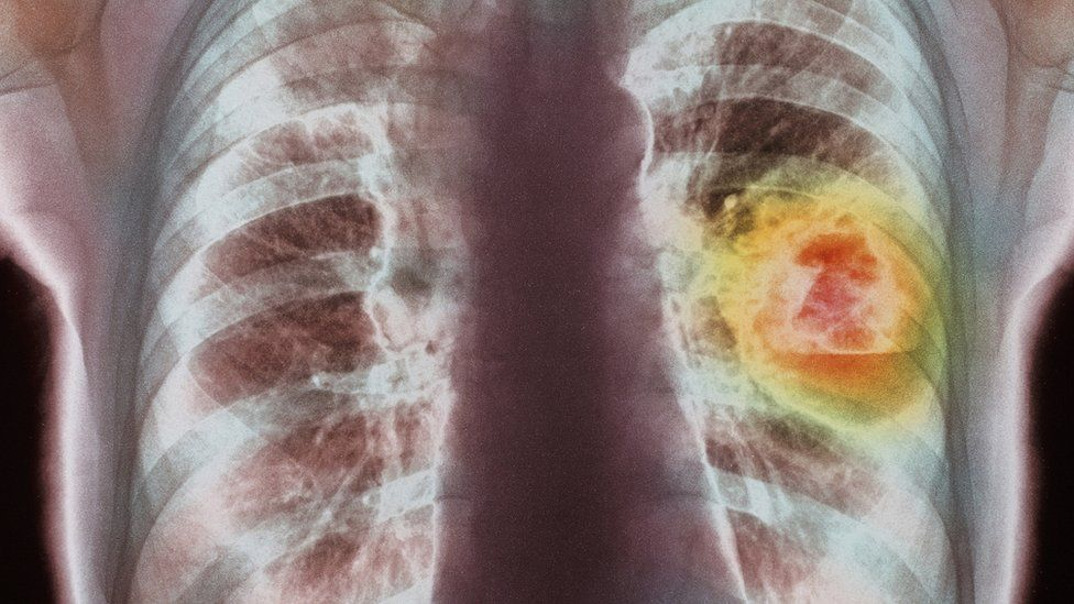 An x-ray of lung cancer