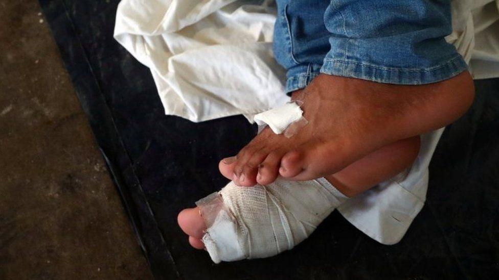 A migrant's bandaged feet