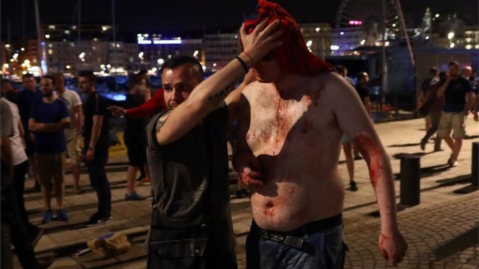 A football fan is helped after sustaining a head wound in Marseille