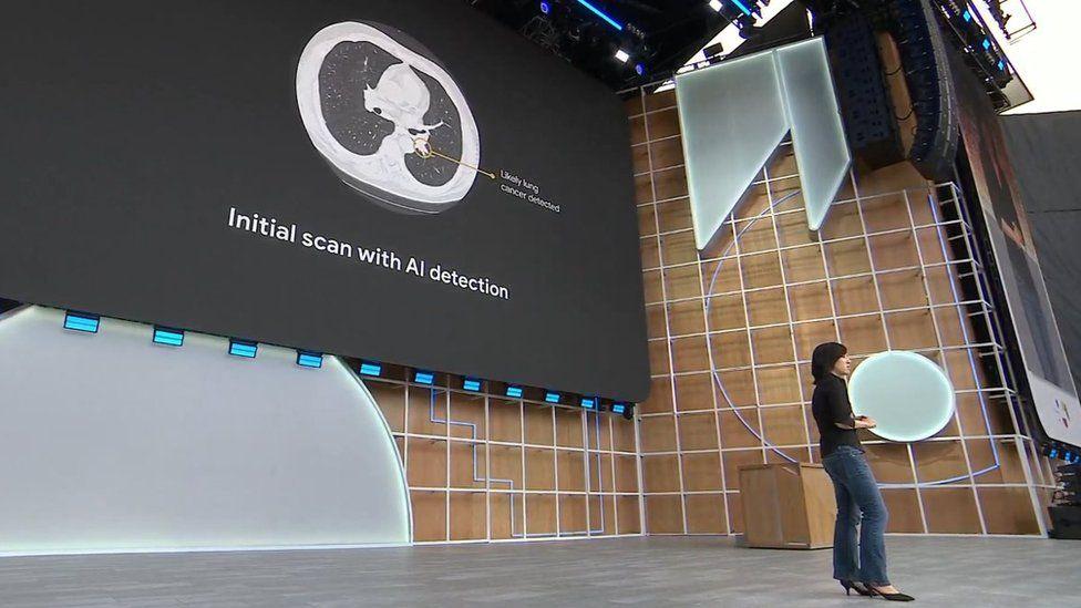 Google AI cancer announcement