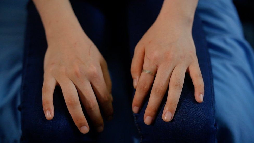 Jiyun's hands marked by scratches after a five hour mountain ascent over the Chinese border