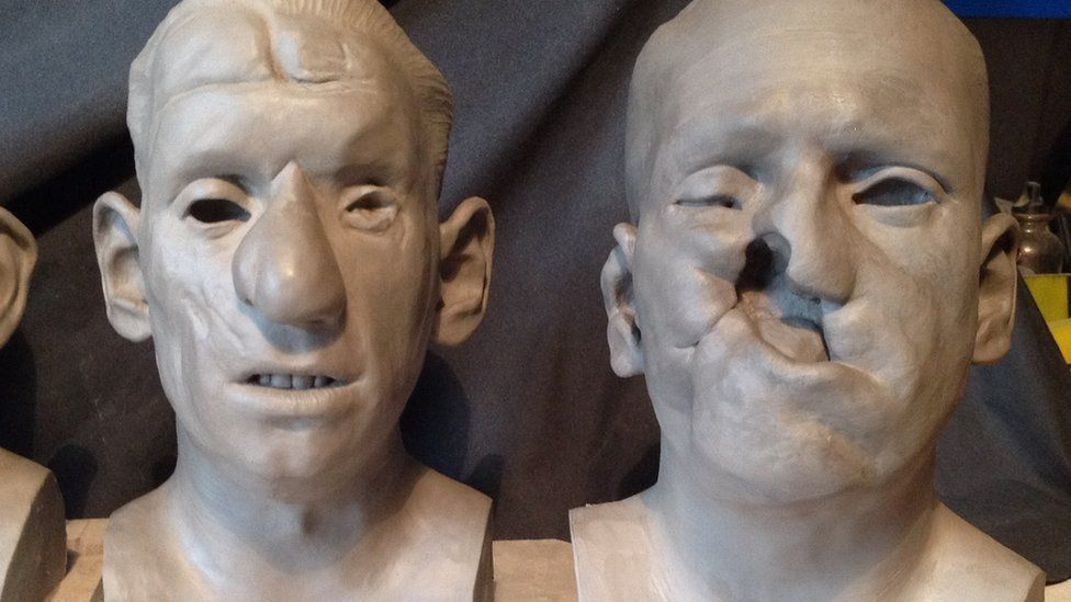 Sculptures of people with facial injuries