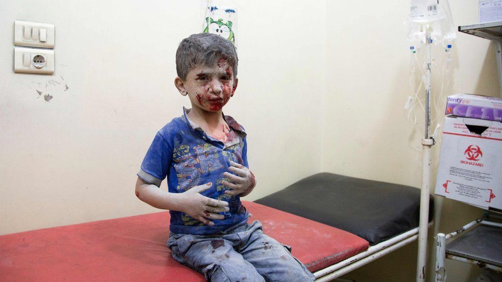 A Syrian boy awaits treatment at a make-shift hospital following air strikes on rebel-held eastern areas of Aleppo on September 24, 201