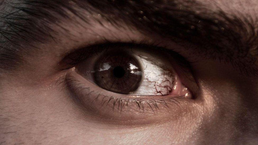 É possível mudar a mente de um psicopata?