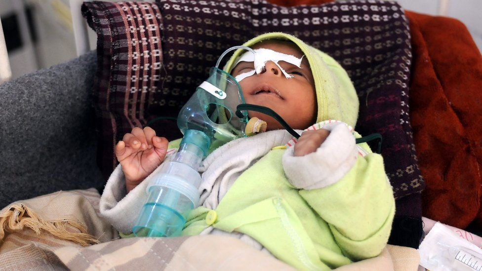 A malnourished child gets medical attention in Yemen in this 2017 file photo