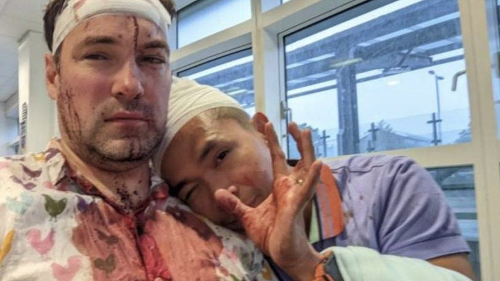 Rob and Patrick after the attack
