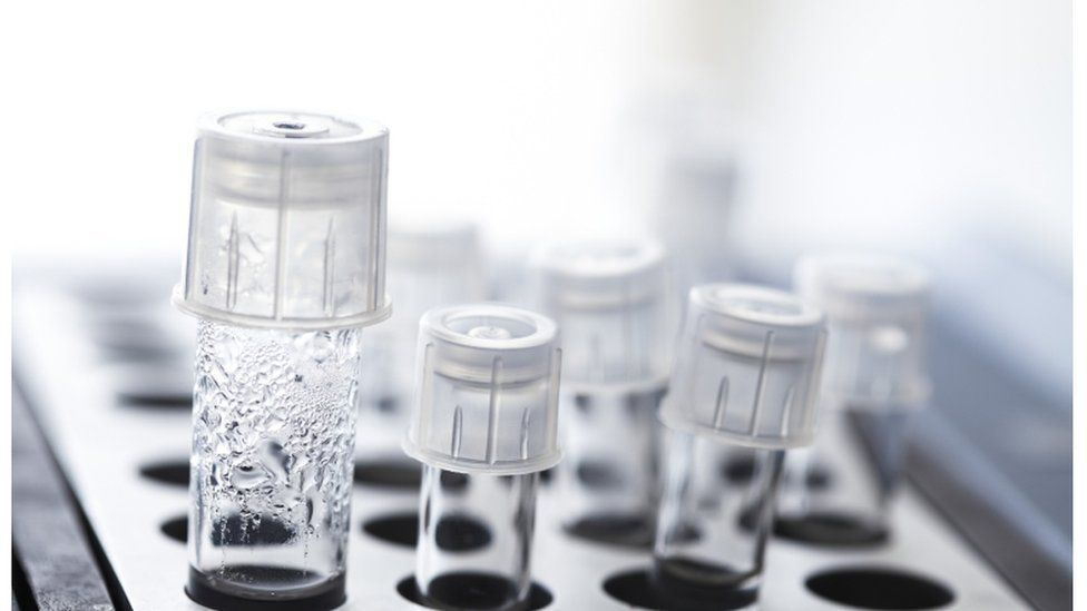 eggs in a test tube to be used for IVF
