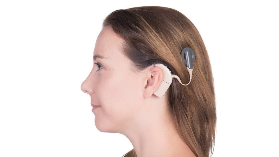 Young woman wearing a cochlear implant