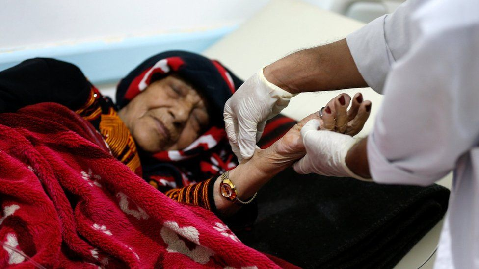A doctor checks Jalila Derhim, 50, at a cholera treatment centre in Sanaa, Yemen (8 October 2017)