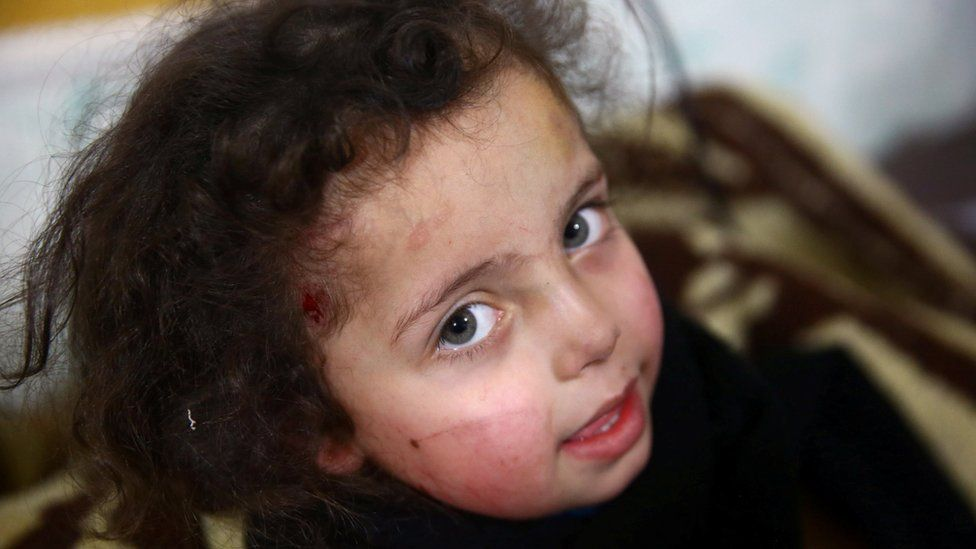 A wounded girl is seen in a hospital in the besieged town of Douma, Eastern Ghouta, Damascus, Syria, 23 February 2018