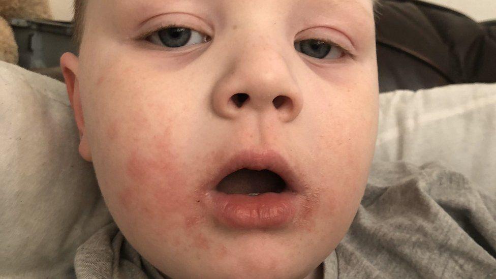 Archie having a reaction