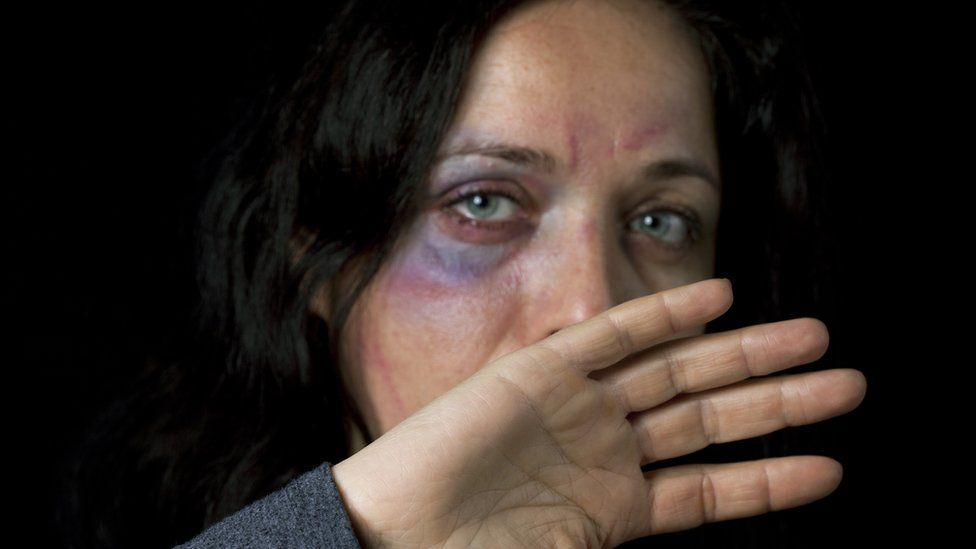 Stock photo of injured woman defending herself (Picture posed by model)