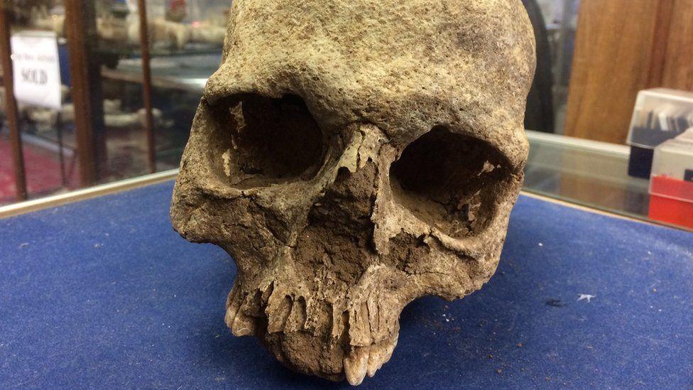 Anglo-Saxon skull