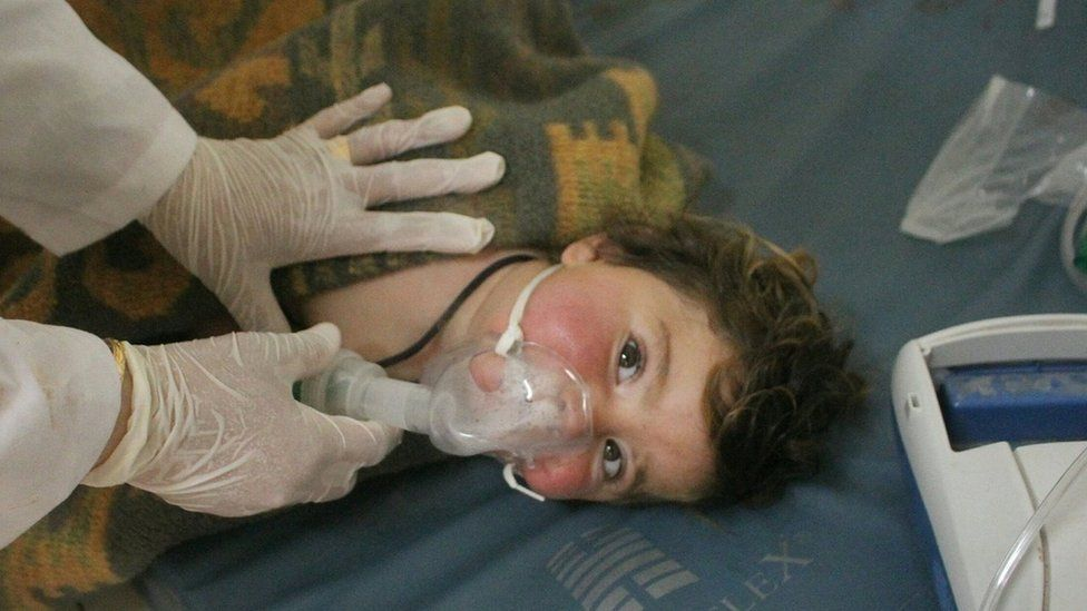 Handout photo made available by the pro-opposition Edlib Media Center on 4 April 2017 showing what is said to be a child receiving treatment at a field hospital after an alleged chemical attack in Khan Sheikhoun, Syria
