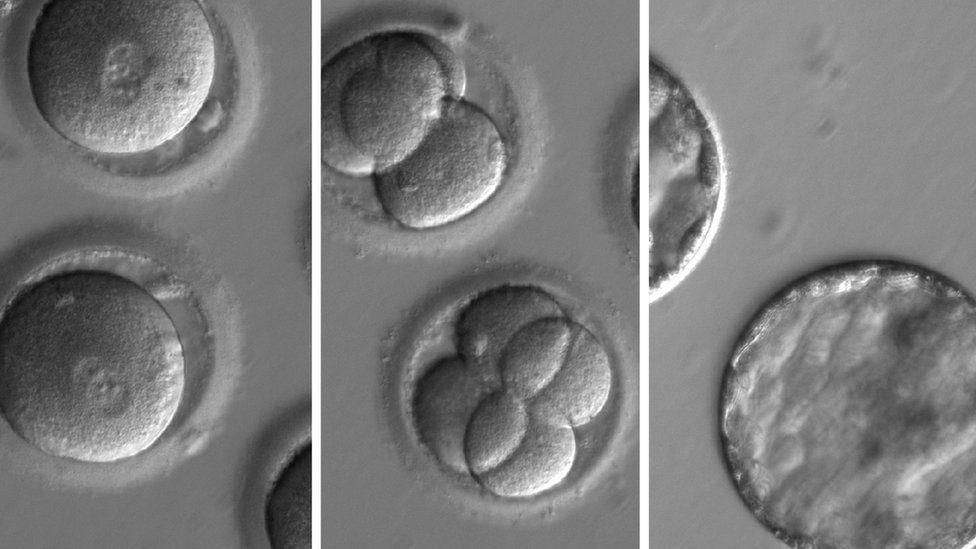 Científicos de EE.UU. y Corea del Sur logran por primera vez corregir una grave enfermedad hereditaria en embriones humanos