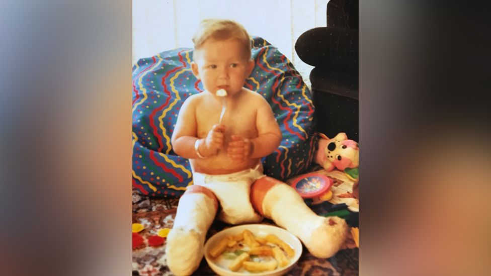 Laura as a baby with bandages on her legs