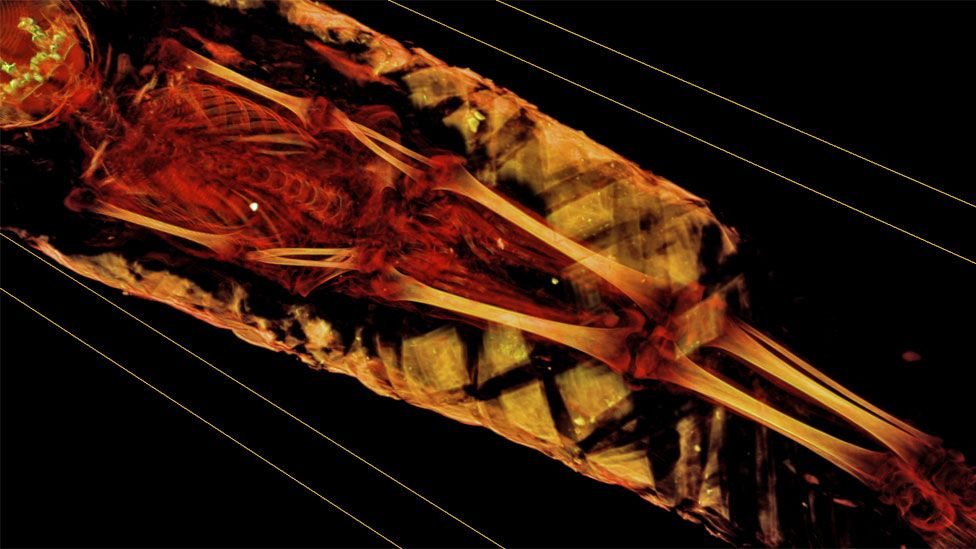 Scan of skeleton