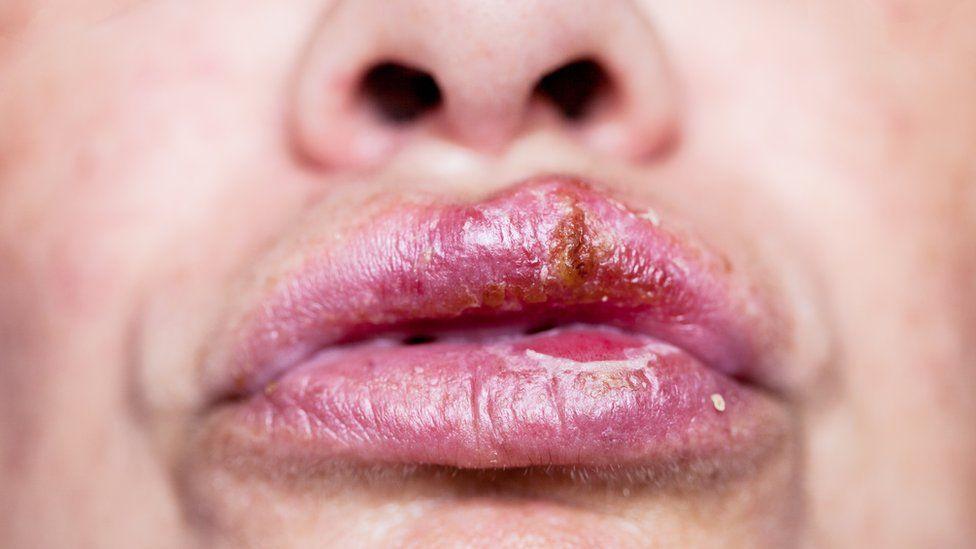 saber si tienes herpes genital
