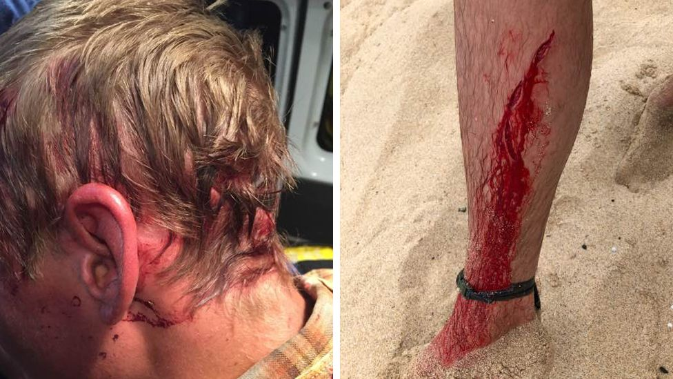 A composite image of Dylan McWilliam's head wound from a beat attack and leg injury from a shark bite