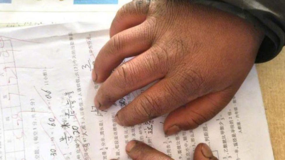 Swollen hands of a migrant child