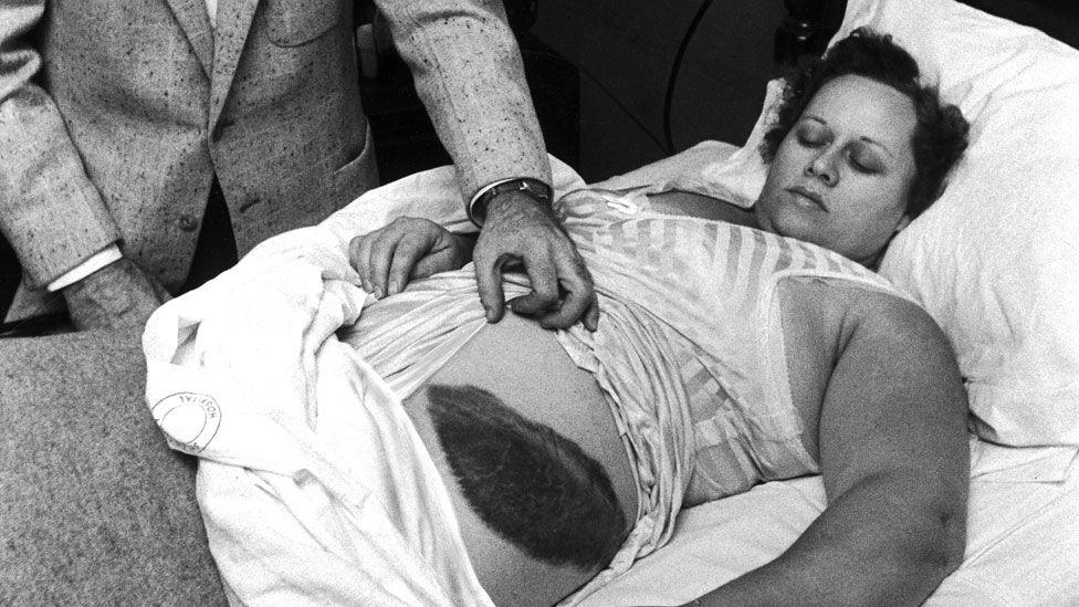 Ann Hodges, la única persona que ha sido golpeada por un meteorito