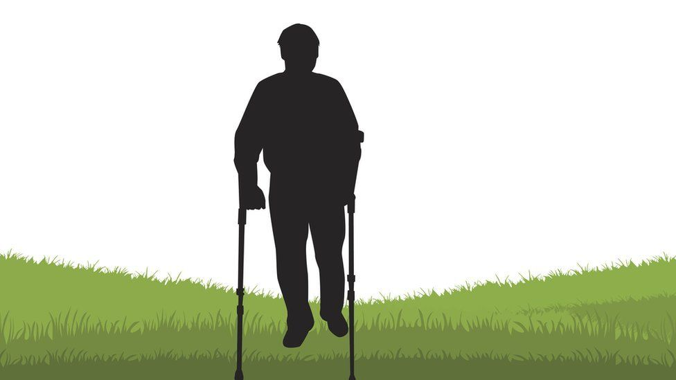 Síndrome de Werner: el hombre que envejece demasiado rápido