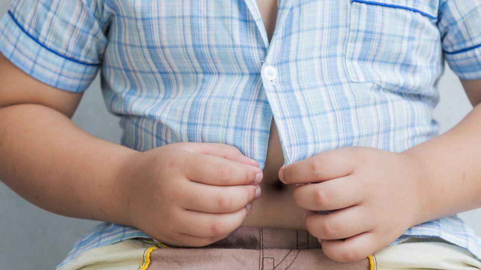 Obesidade está elevando desnutrição no mundo, indica pesquisa