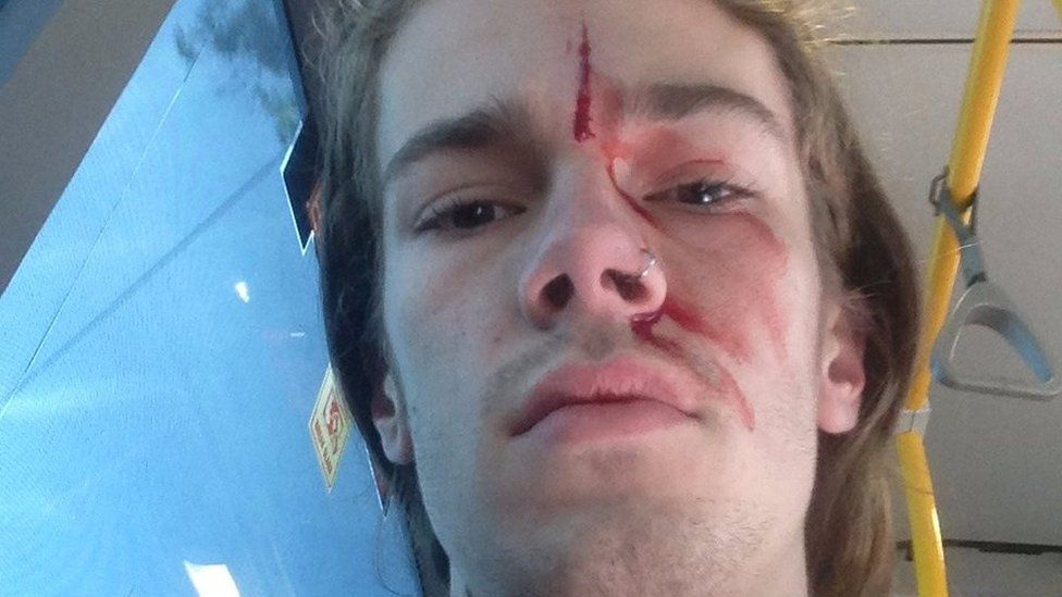 A photo of Kevin Rudd's godson, Sean, with a bloody face