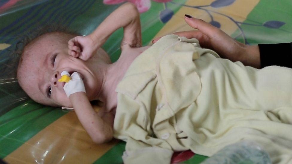 Picture showing malnourished child