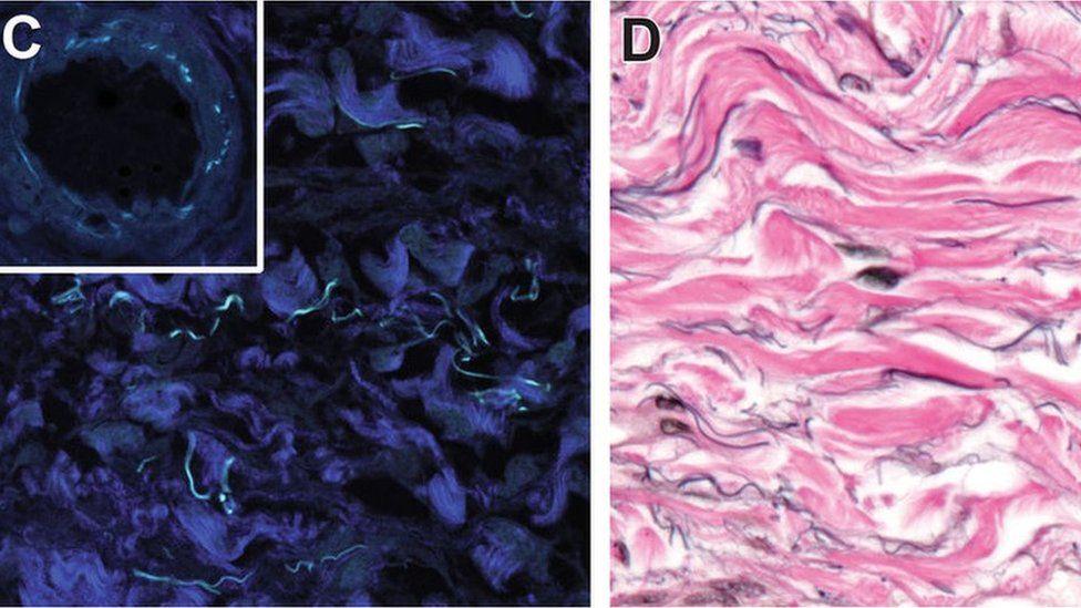 Interstício, o 'novo órgão' do corpo humano que a ciência acaba de descobrir