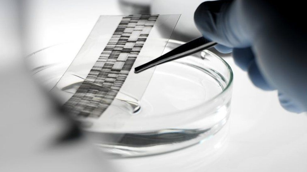 DNA autoradiogram being picked up with a pair of tweezers from a petri dish. An autoradiogram is produced during DNA (deoxyribonucleic acid) analysis. 17 May 2007
