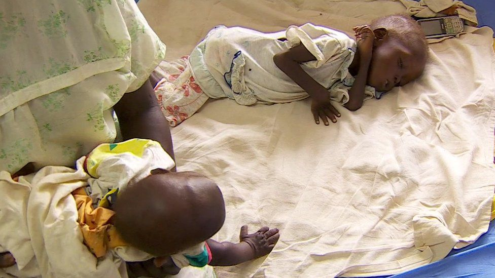 Children suffering from malnutrition in South Sudan