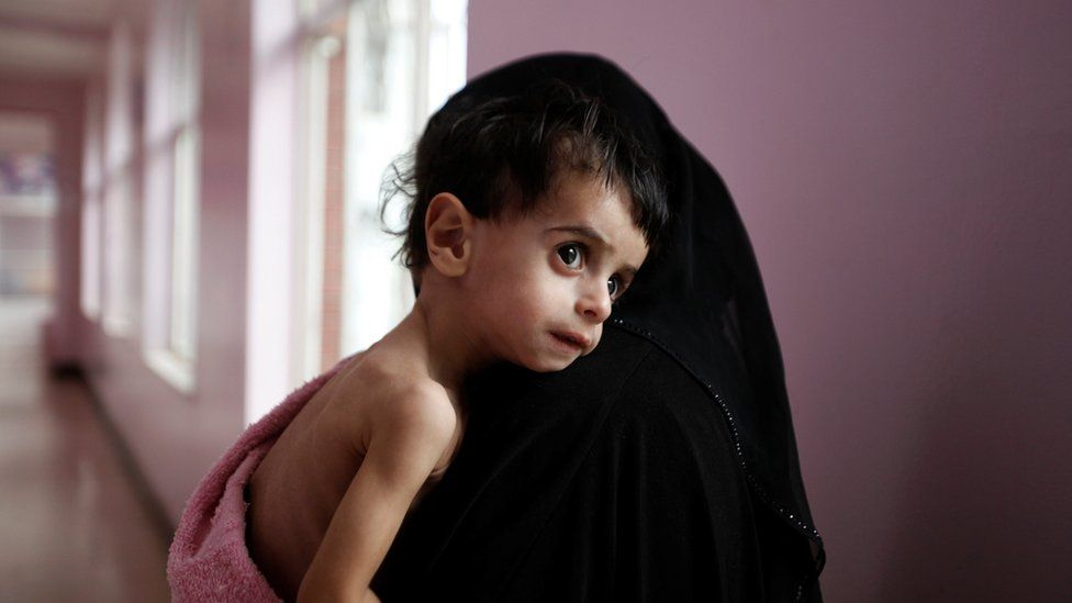 A woman holds her malnourished boy after he was weighed at a hospital malnutrition intensive care unit in Sanaa, Yemen September 27, 2016.